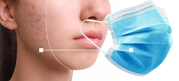 Irritazioni da mascherina: ecco alcuni rimedi